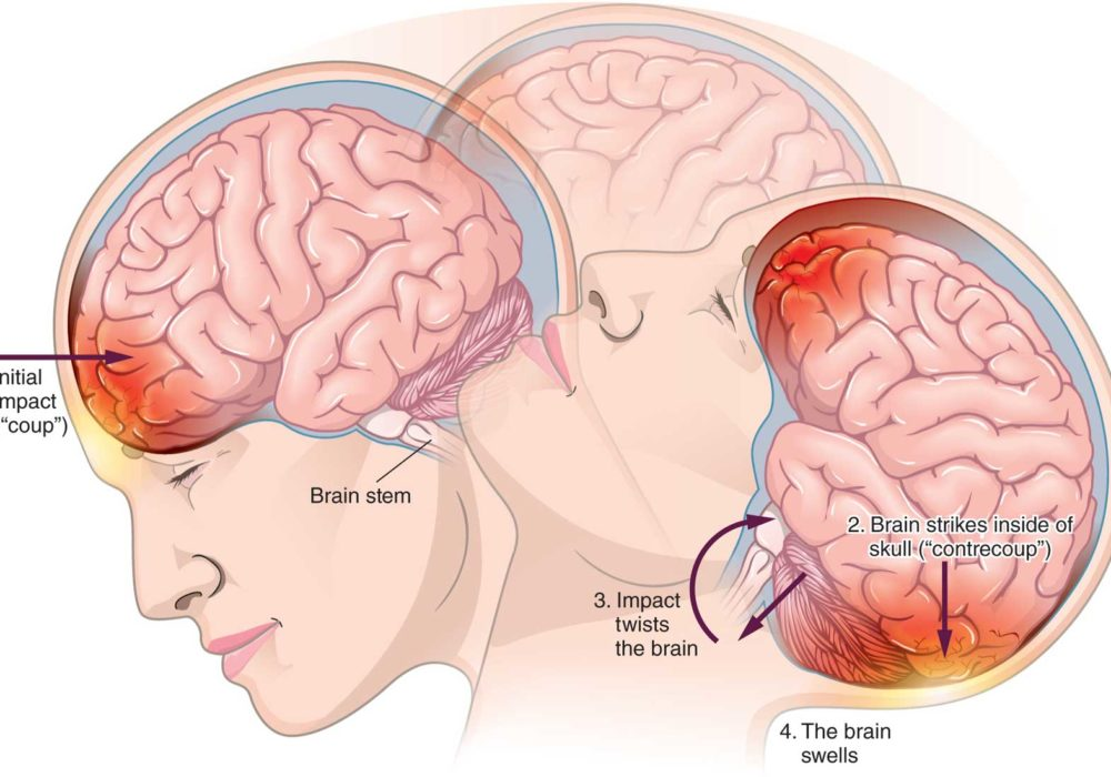 Brain Impact Illustration