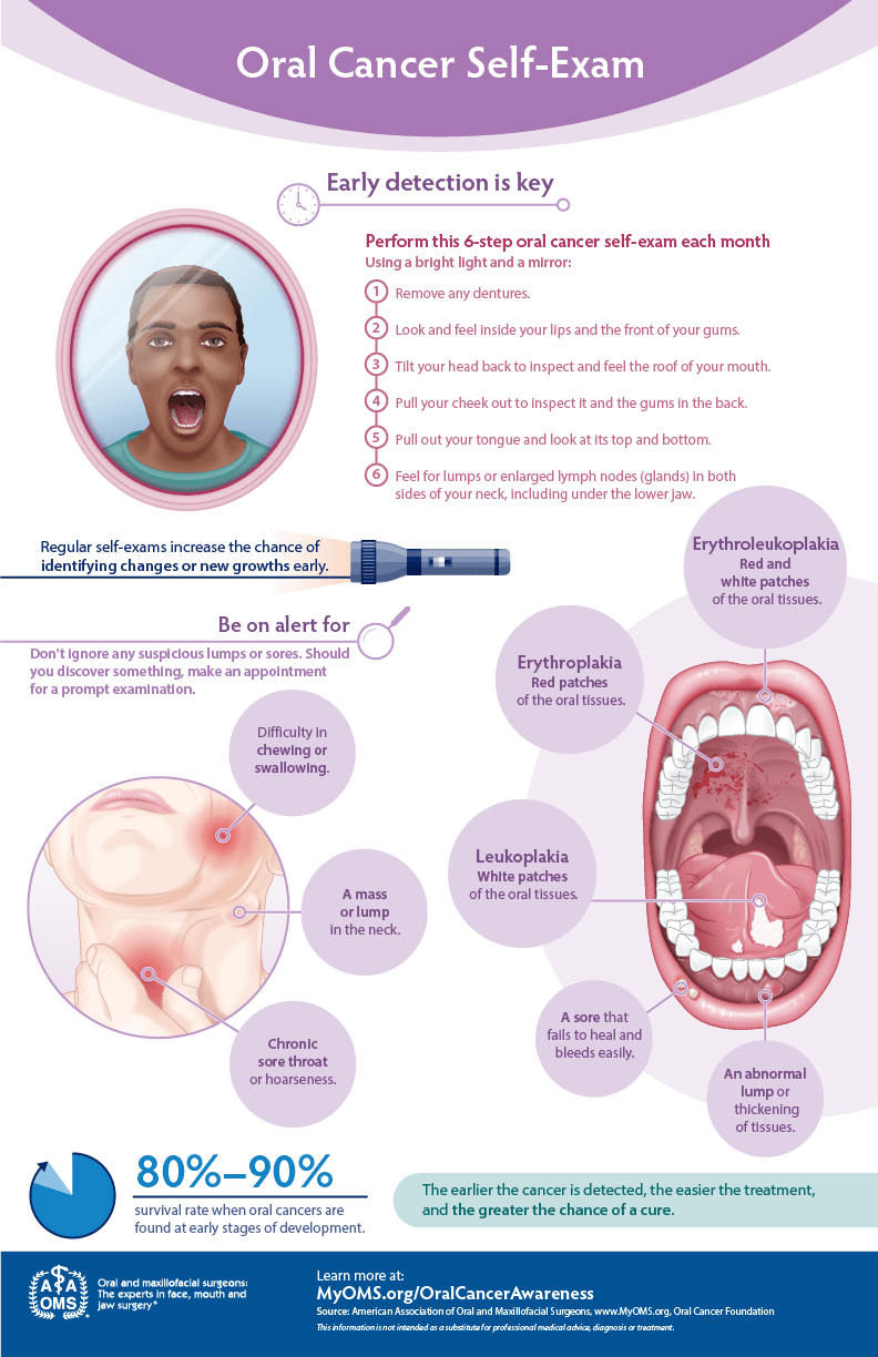 Oral Cancer Self Exam